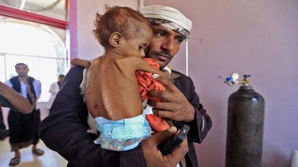 هشدار درخصوص تروریستی خواندن حوثی های یمن